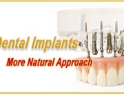 Dental Implants - A More Natural Approach