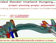 All on 4 Implant India