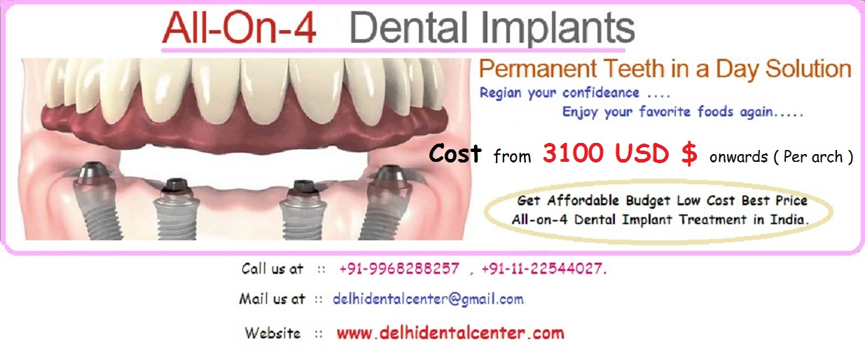 Cost Of Full Mouth All On 4 Dental Implant In India Delhi Dental
