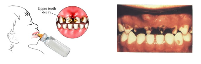tooth_decay