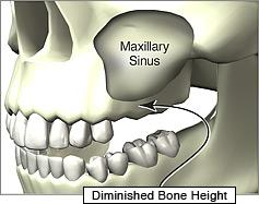 sinus-lift-procedure