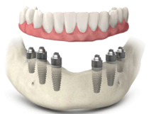 full-mouth-implants