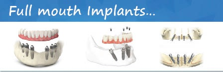 Full-mouth-Implant-treatment-india