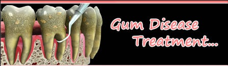 Gum-Disease-Treatment-India