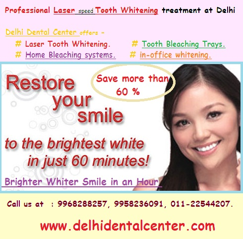 Dental_Whitening_Delhi_Dental_Center.