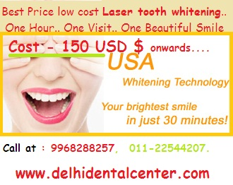 Laser_tooth_whitening_cost_price_Delhi_India.