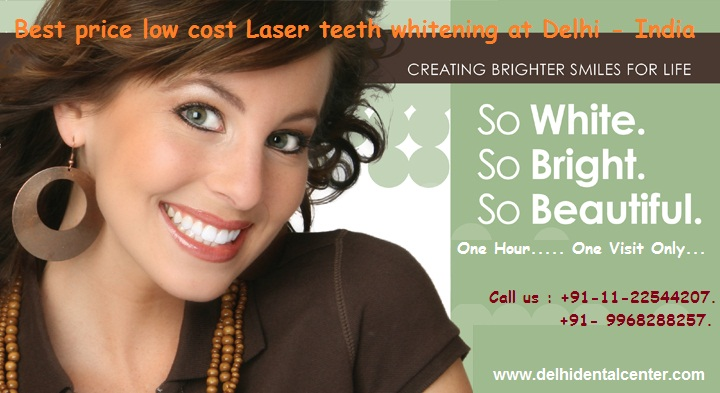 Tooth-whitening-delhi-india.