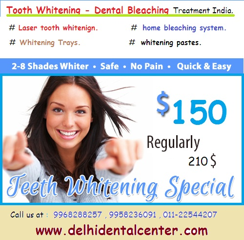 Tooth_Teeth_Whitening_Delhi_India.
