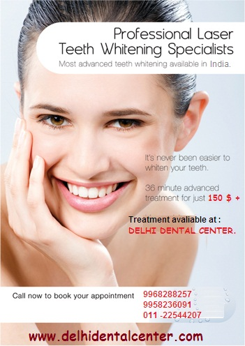 tooth whitening in Delhi India