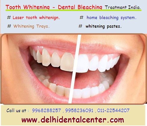 Teeth whitening Delhi India