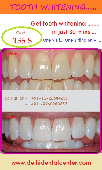 tooth-whitening-cost-delhi-india.