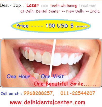 tooth_whitening_cost_price_Delhi_India.
