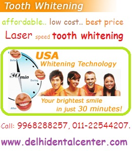 tooth_whitening_treatment_Delhi_India.