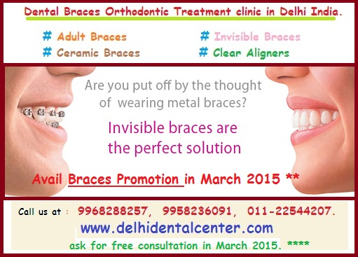 Best Braces For Adults 2013