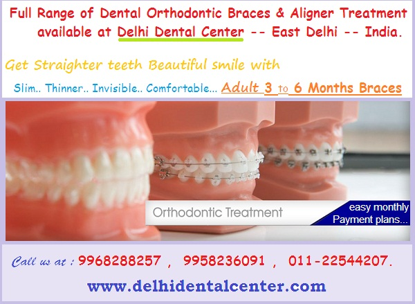 dental-braces-treatment-east-delhi-banner.