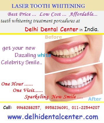 laser_teeth_whitening_procedure_Delhi_India.