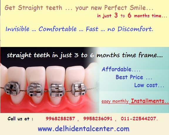 orthodontic-treatment -Delhi-India_banner