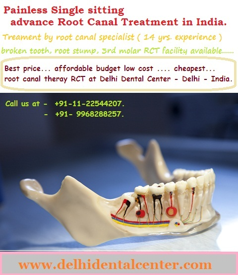Best Price Root Canal Treatment In Delhi Preet Vihar
