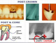 Best price Root Canal Treatment in Delhi