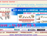 Cheap and Best Dental Implant in Delhi India