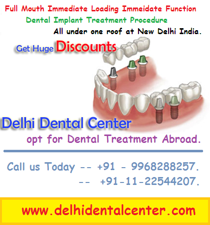 full mouth implants surgery in india