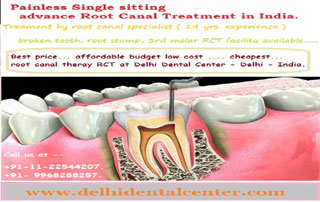 Price Of Root Canal Treatment Rct In East Delhi India Delhi