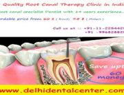 Painless Root Canal Treatment India