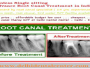 Root Canal Cost India