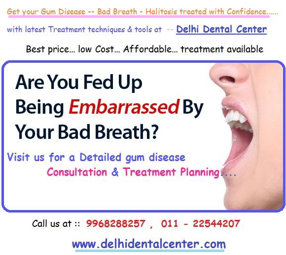 Bad Breath Treatment >> Bad Breath Causes Cures And Treatment Delhidentalcenter