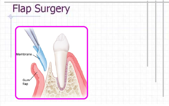 Flap Surgery Delhi India