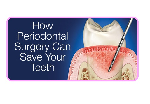 Best Top Periodontal Flap Surgery Treatment procedure dentist clinic in Delhi India