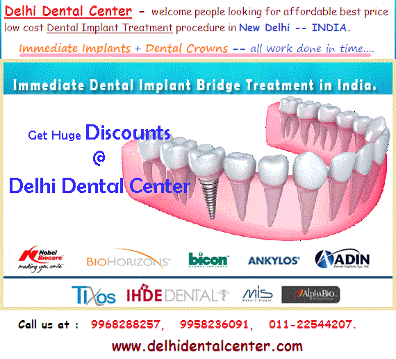Best Implant Dentist Near Me: Full Mouth Teeth Implant Treatment Procedure In