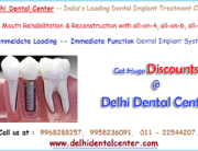 Full Mouth Dental Implant Treatment Procedure in India