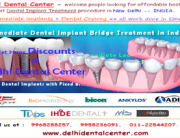 All On 6 - Full Mouth Teeth Implant Treatment Procedure in India