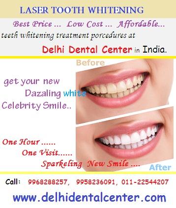 Laser Teeth Whitening Cost In Delhi Teethwalls